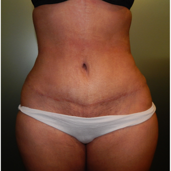 35-44 year old woman treated with Tummy Tuck after 3175243