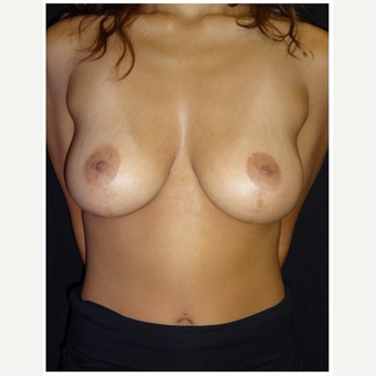 25-34 year old woman treated with Breast Lift after 3175340