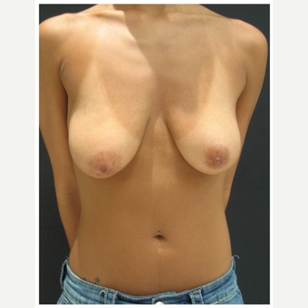 25-34 year old woman treated with Breast Lift before 3175340