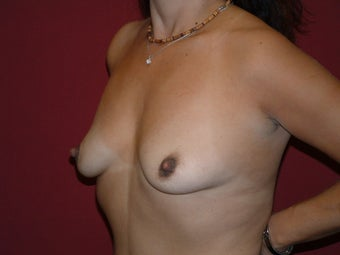 Breast Augmentation before 683111