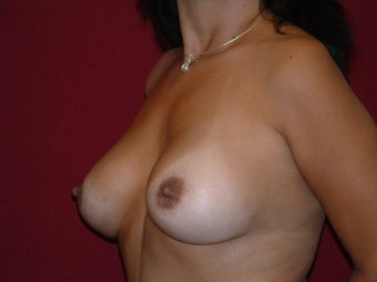 Breast Augmentation after 683111