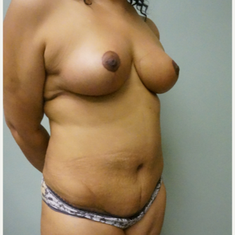 45-54 year old woman treated with Breast Lift after 3454005