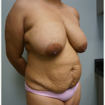 45-54 year old woman treated with Breast Lift before 3454005