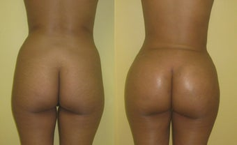 Brazilain Butt Augmentation in 25 Year Old Ethiopian Woman before 1373760