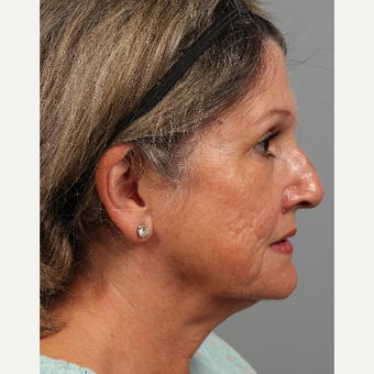 55-64 year old woman treated with Facelift before 3343742