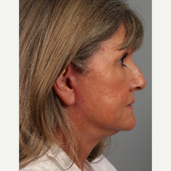 55-64 year old woman treated with Facelift after 3343742