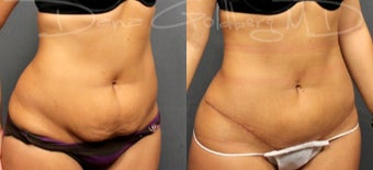 Tummy Tuck With Liposuction after 1733338