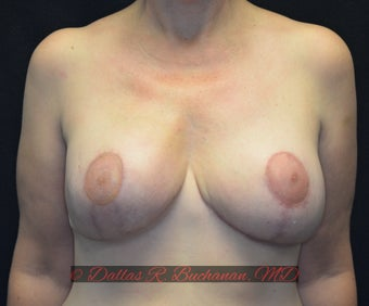 48 year old woman treated with Breast Reconstruction after 3319992