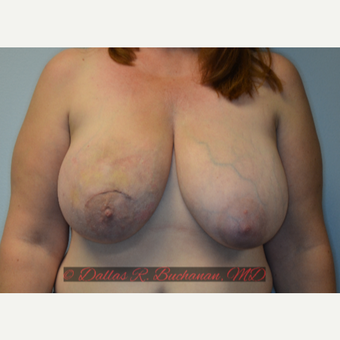 48 year old woman treated with Breast Reconstruction before 3319992