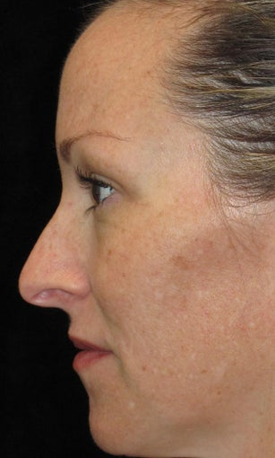 35-44 year old woman treated with Halo Laser 3092485