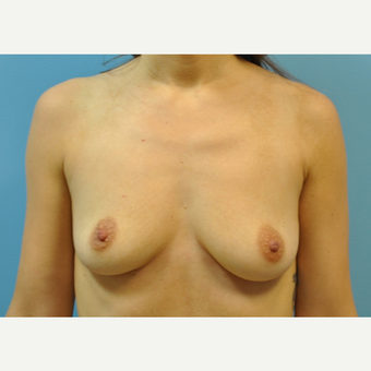 30 year old woman treated with Breast Augmentation, silicone 430 cc ultra high profile before 3508244