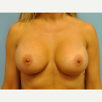30 year old woman treated with Breast Augmentation, silicone 430 cc ultra high profile after 3508244