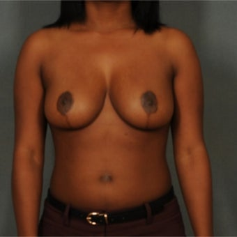 25-34 year old woman treated with Breast Reduction after 2267003