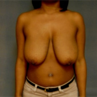 25-34 year old woman treated with Breast Reduction before 2267003