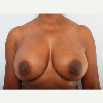 Breast Implant Exchange after 2966297