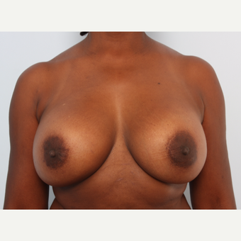 Breast Implant Exchange before 2966297