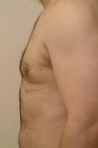 29 year old male who complains of enlarged breasts (gynecomastia) after 1481487