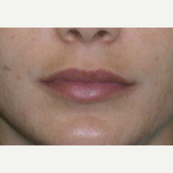 25-34 year old woman treated with Restylane after 3147076
