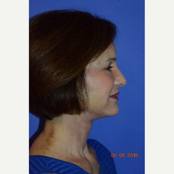 55-64 year old woman treated with Liquid Facelift after 3226768