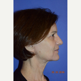 55-64 year old woman treated with Liquid Facelift before 3226768