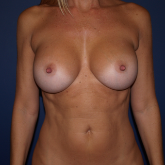 45-54 year old woman treated with Breast Augmentation after 3398502