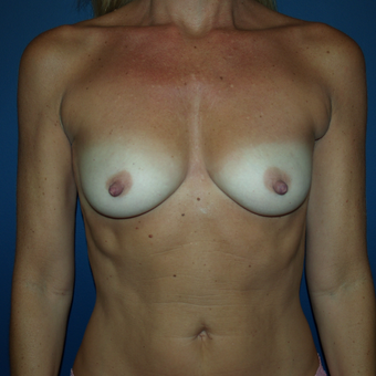 45-54 year old woman treated with Breast Augmentation before 3398502