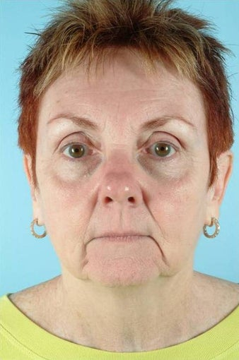 62 Year Old Female Treated for Unwanted Facial Lines before 1016583