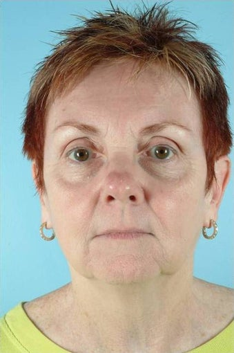62 Year Old Female Treated for Unwanted Facial Lines after 1016583