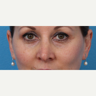 45-54 year old woman treated with Juvederm after 3340014