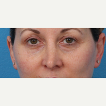 45-54 year old woman treated with Juvederm before 3340014