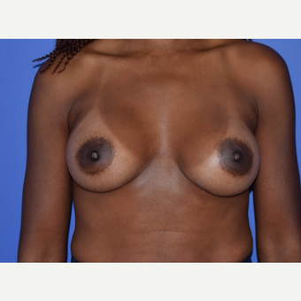 Breast Augmentation with Ideal Saline Breast Implants 350 cc after 3080171