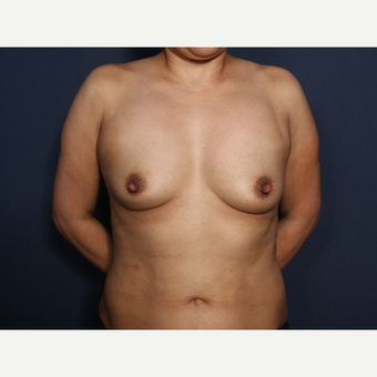 45-54 year old woman treated with Breast Augmentation (view 1 of 2) before 3286885