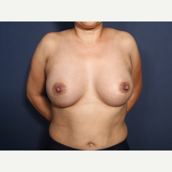45-54 year old woman treated with Breast Augmentation (view 1 of 2) after 3286885