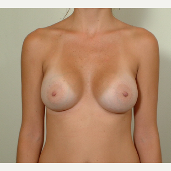 25-34 year old woman with post pregnancy pseudoptosis treated with Breast Augmentation after 3364465