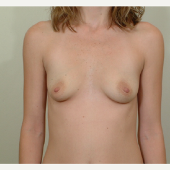 25-34 year old woman with post pregnancy pseudoptosis treated with Breast Augmentation before 3364465