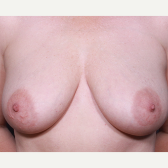 Breast Lift With Implants before 3265876