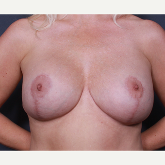 Breast Lift With Implants after 3265876
