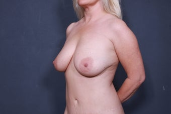Breast Lift With Implants 3265876