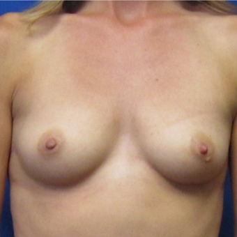 25-34 year old woman treated with Breast Augmentation before 2720849