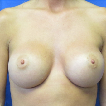 25-34 year old woman treated with Breast Augmentation after 2720849