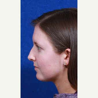 18-24 year old woman treated with Rhinoplasty before 3109155