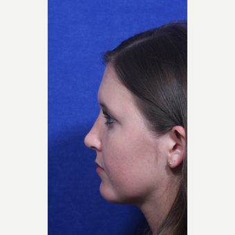 18-24 year old woman treated with Rhinoplasty after 3109155