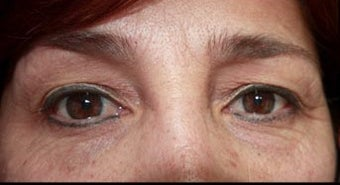 45-54 year old woman treated with Chemical Peel before 3417663