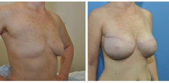 620g anatomic (teardrop) cohesive gel implant – bilateral 2 stage expander-implant breast recontruction after 1210491