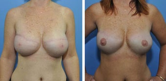 620g anatomic (teardrop) cohesive gel implant – bilateral 2 stage expander-implant breast recontruction before 1210491
