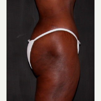 Liposuction 1699700