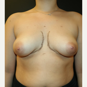 25-34 year old woman treated with Breast Implants before 3566216