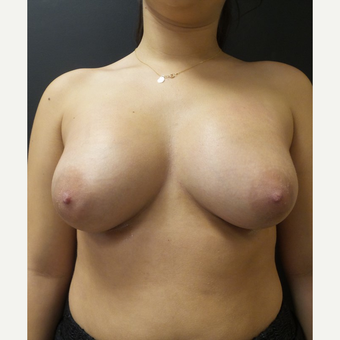 25-34 year old woman treated with Breast Implants after 3566216