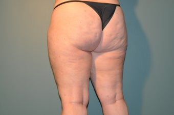 Cellulaze after 1098246