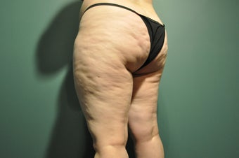 Cellulaze before 1098246